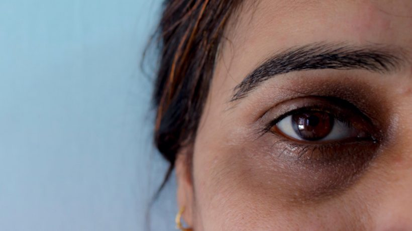 How to remove laser dark circles